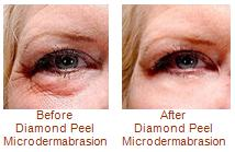 Diamond Peel Microdermabrasion | Beauty-Full Spa