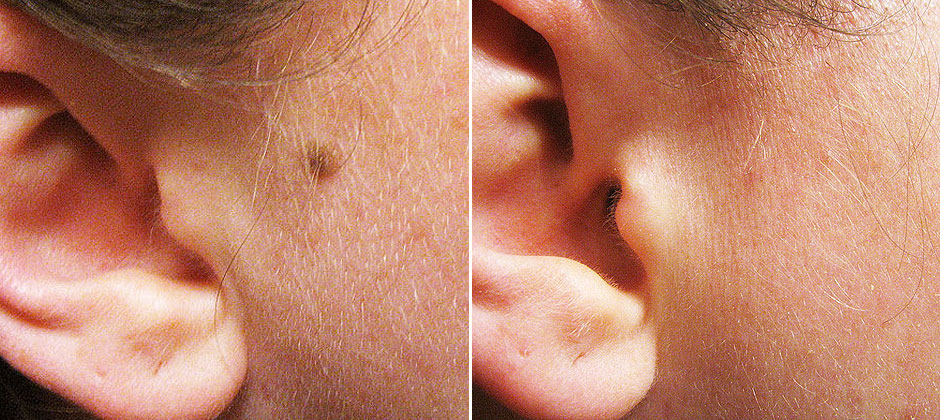 Mole Removal Before and After