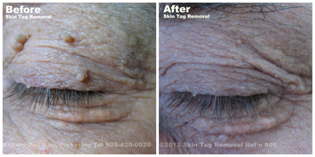 Skin Tag Removal Pickering Toronto Gta Beauty Full Spa